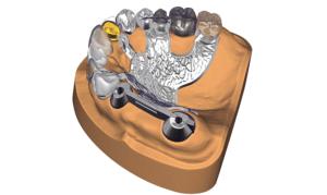 Exocad DentalCAD Indikationen