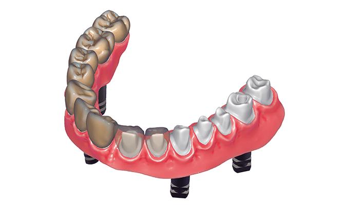 Exocad Implantat Modul