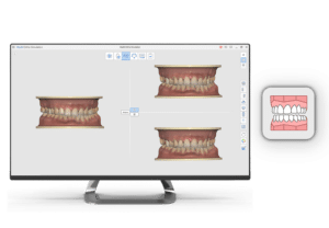 Medit i500 App Ortho Simulation