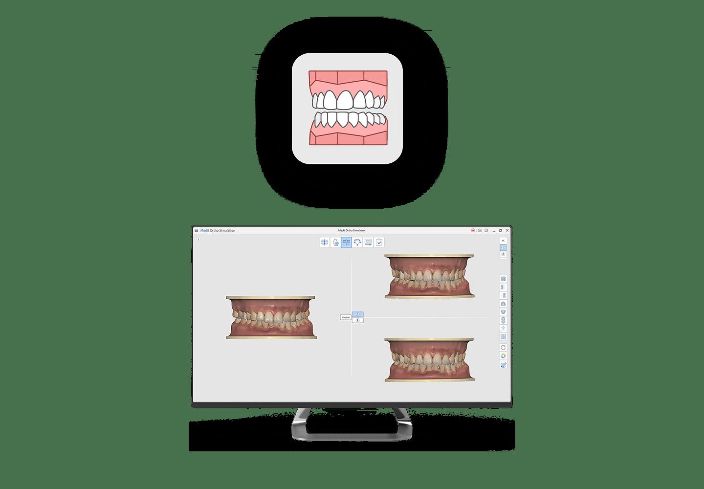 Medit Ortho Simulation
