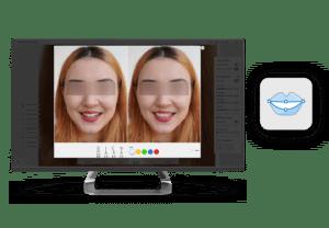 Medit i500 Apps Smile Design