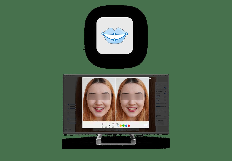 Medit Smile Design